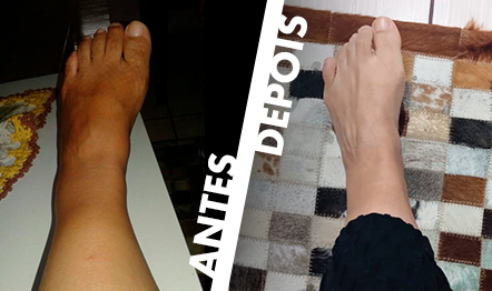 Rosimeri Cardoso, de Gramado, publicou fotos atestando sua recuperação.